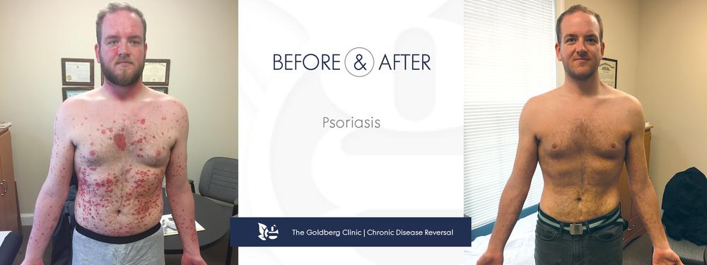 GC-BA_psoriasis.png