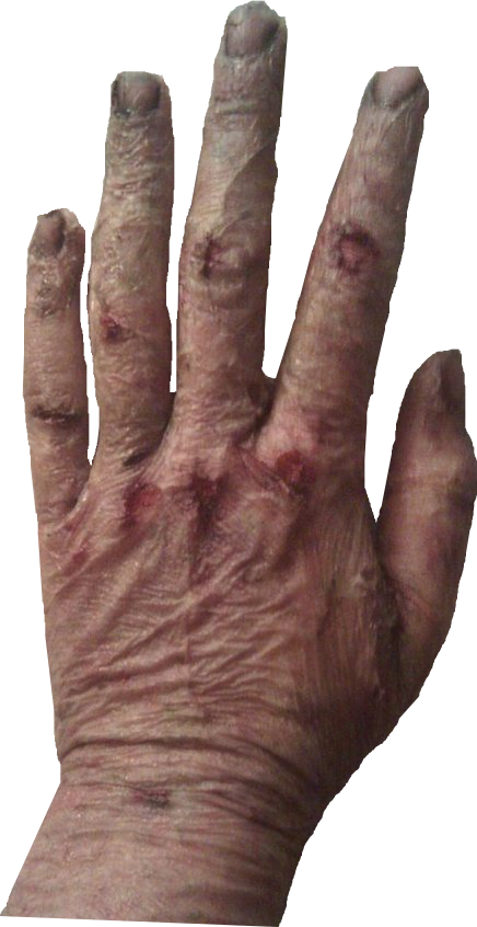 5 Scars