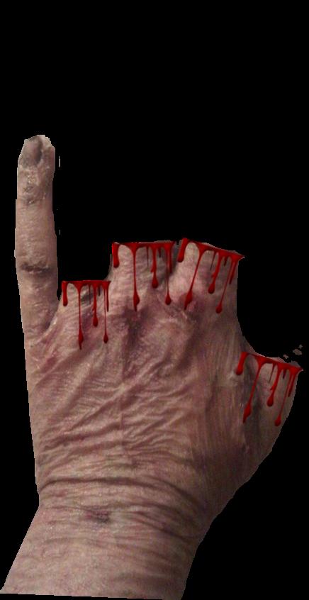 1 Scar