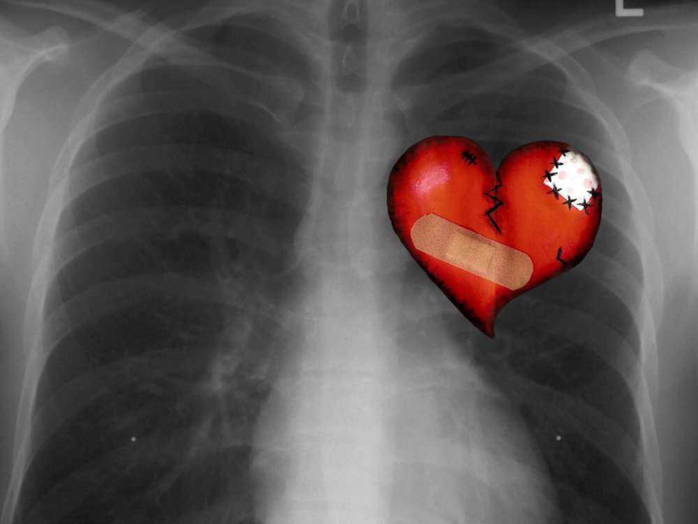 chest-x-ray-backgrounds-wallpapers.jpg