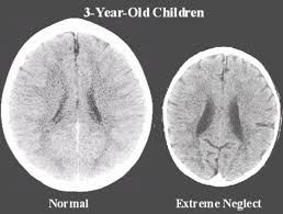 Image courtesy of http://childhoodtraumarecovery.com/2017/02/23/romanian-orphanage-study-early-life-neglect-damages-brain/