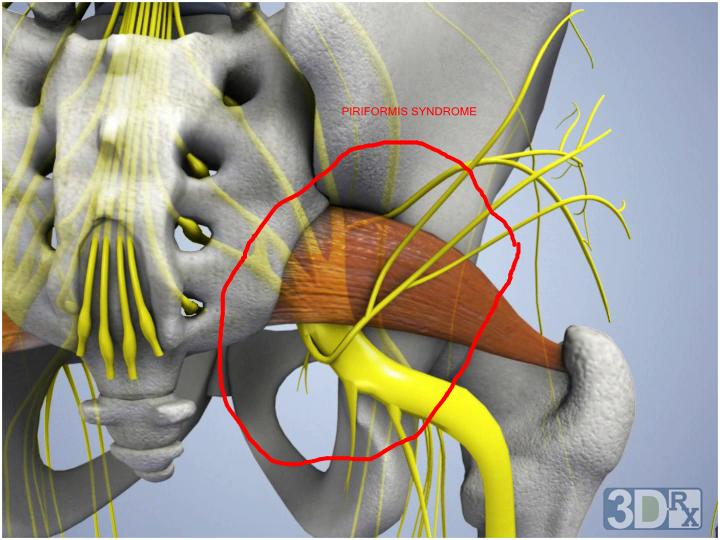 Sciatica Massage Therapy Rochester Ny Pain Relief Massage