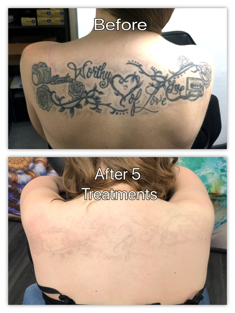 mandie before and after .jpg