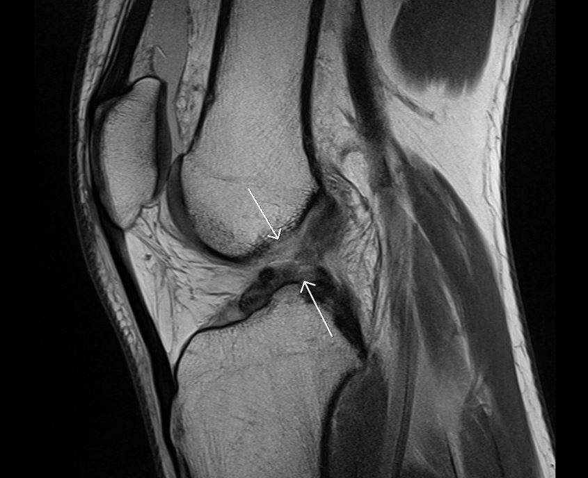 An ACL tear seen on MRI