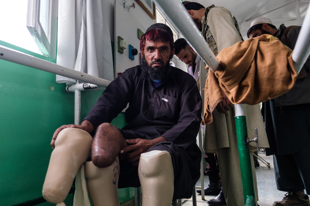 Being fitted for leg prosthetics at the ICRC prosthesis clinic in Kabul. 2018.