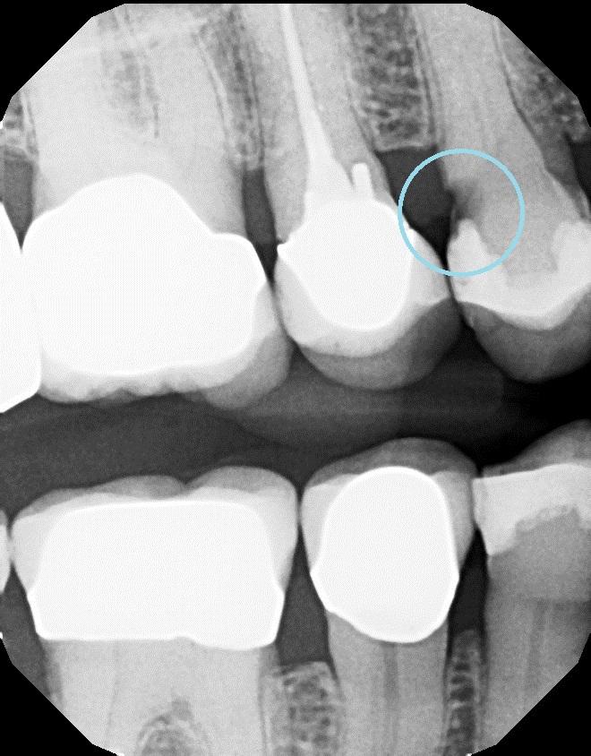 Cavity Found Using X Ray Examination