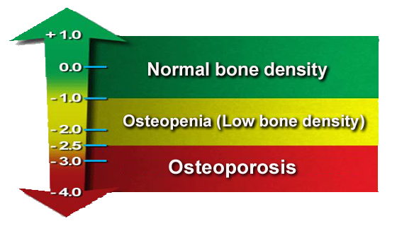 men-with-osteoporosis