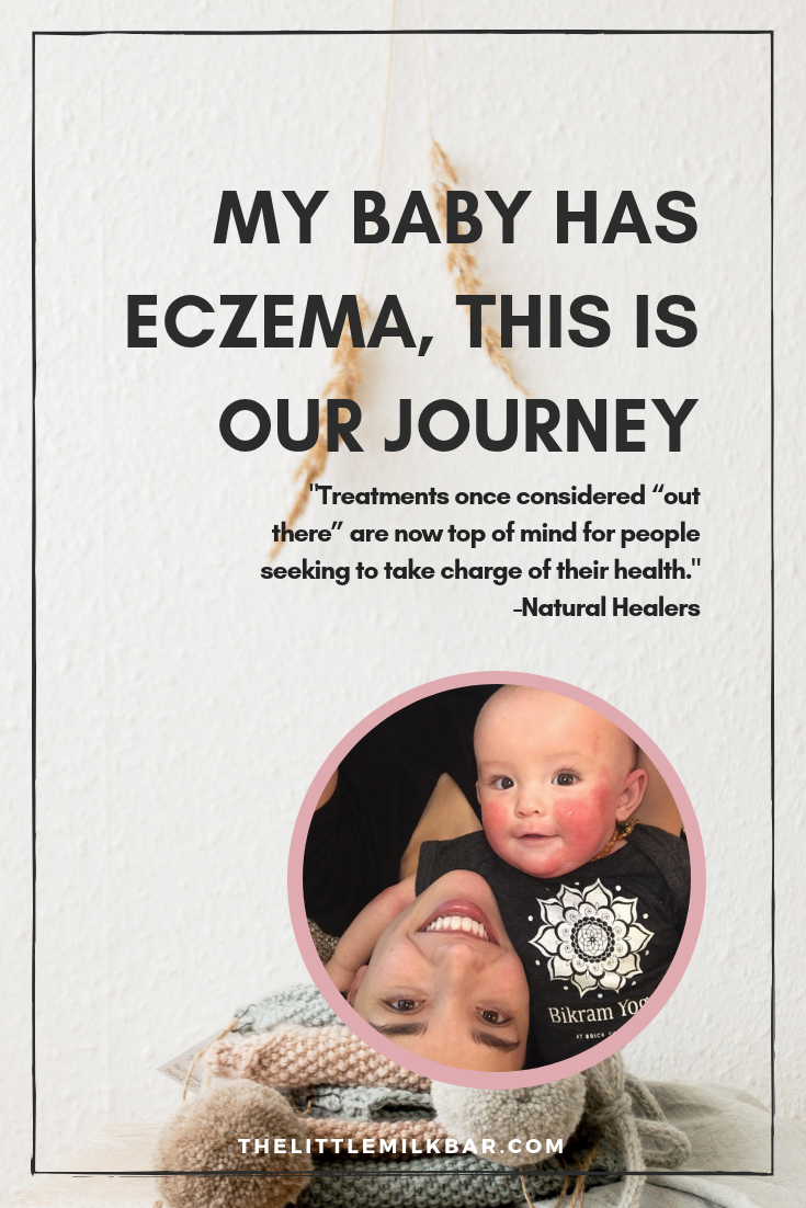 our baby has eczema this is our journey the little milk bar how to heal eczema 4.png
