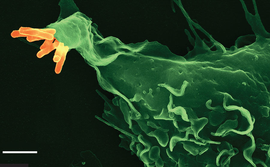 m tuberculosis Active tuberculosis (tb) disease is a serious infection that usually affects the lungs anyone can develop active tb, but you are more likely to develop.