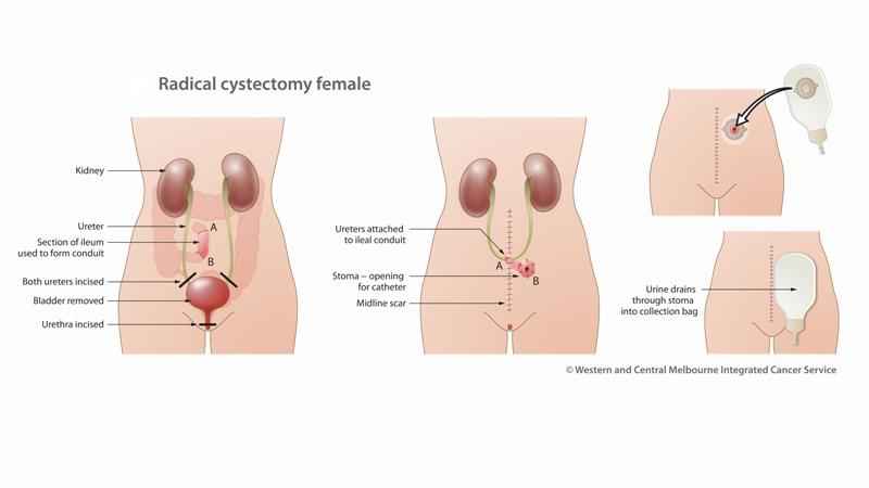 Radical Cystectomy