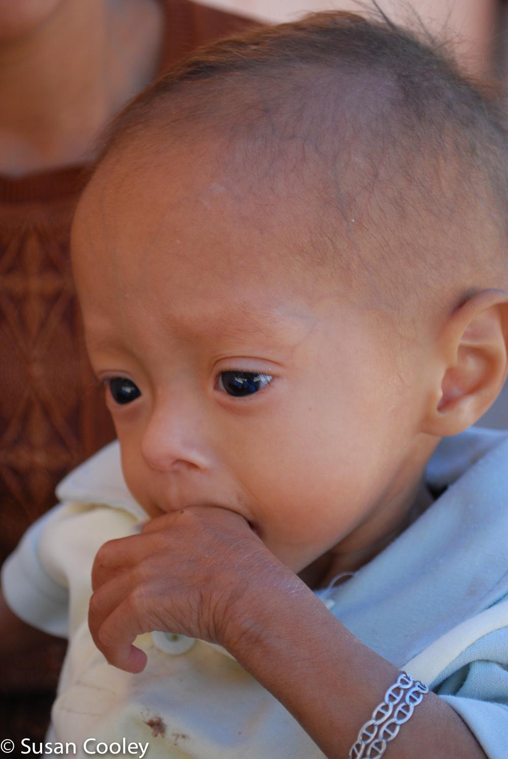 Clinic patient, Guatemala.