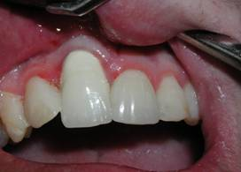 "Pre-op picture showing severe recession of the gum. This has the appearance of a ""fang."""