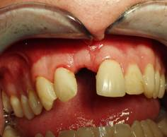 Post-op picture following tooth removal and bone    grafting of the area at the time of the removal.
