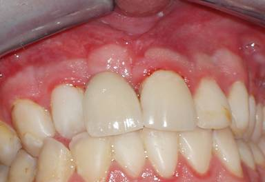 The final replacement tooth held by an implant.   Note the excellent and dramatic improvement from the pre-op appearance above.