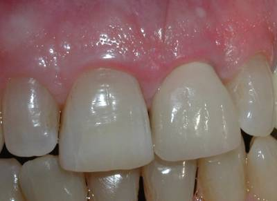 The final clinical appearance of the implant supported crown.   Can you tell which is the natural tooth and which is the implant crown?