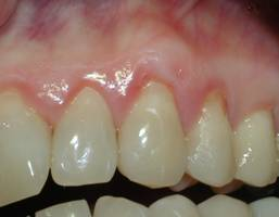 Excellent root overage following the gingival grafting procedure.