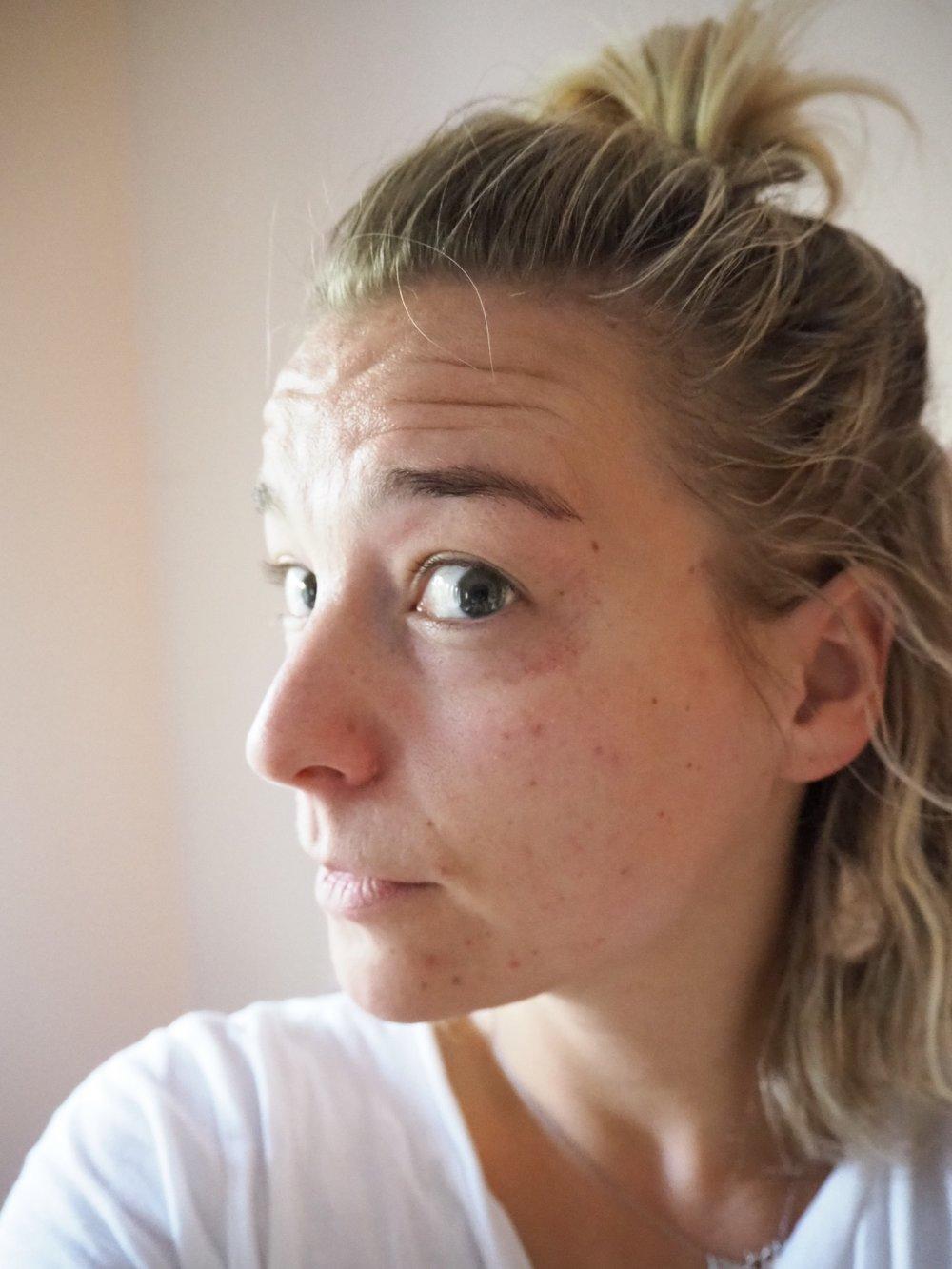 Takhle jsem vypadala den po zákroku, v okolí očí stroupky a na pleti malé modřinky.