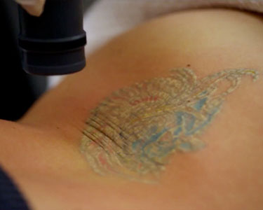 Baltimore Tattoo Removal