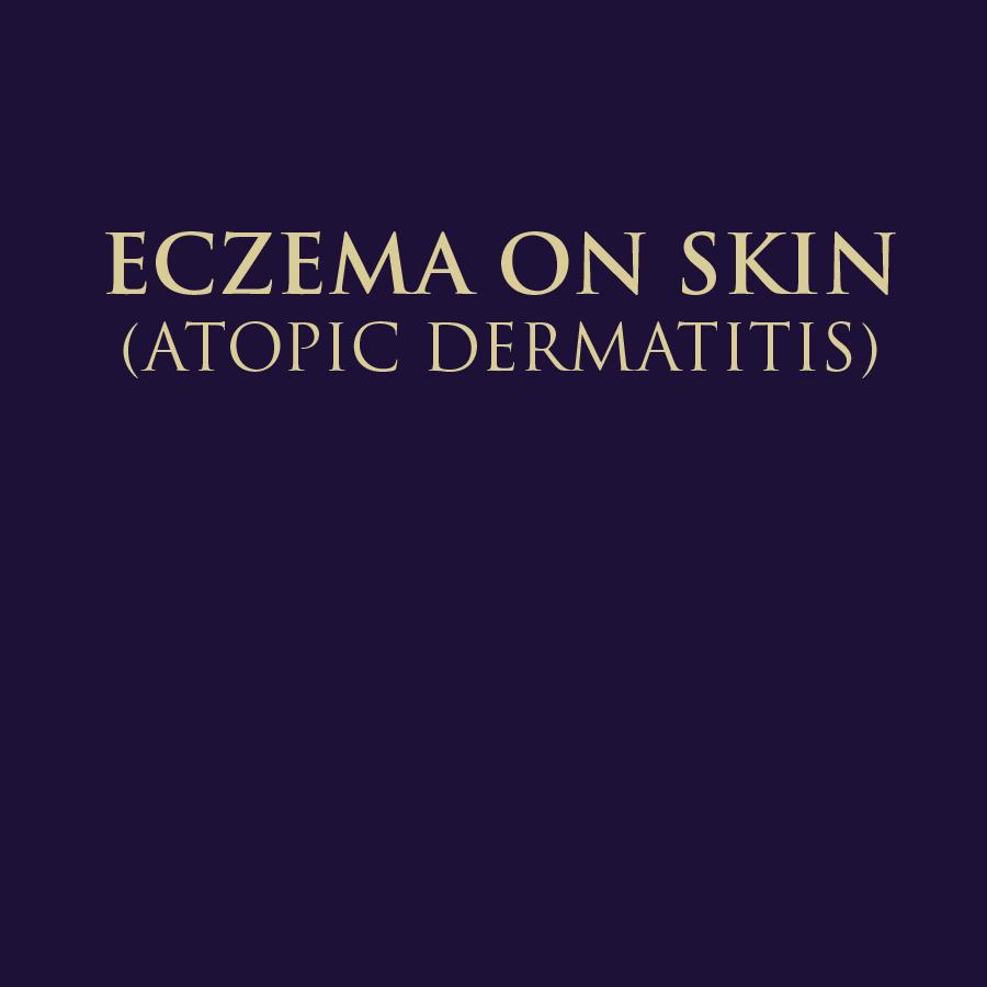 ECZEMA - ATOPIC DERMATITIS