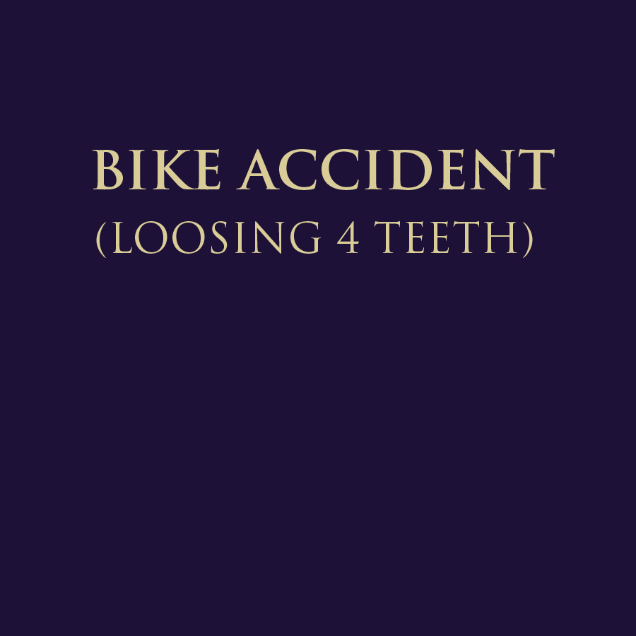BIKE ACCIDENT - LOOSING 4 TEETH