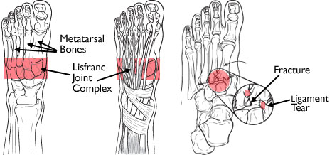 Fig 1.  Lisfranc injury (Courtesy of OrthoInfo:    http://orthoinfo.aaos.org/topic.cfm?topic=A00162   )