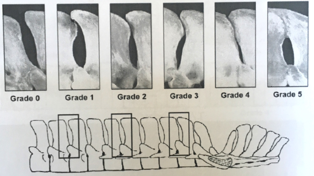 GRADE 0 -  A NORMAL SPACING BETWEEN THE SPINOUS PROCESSES, GRADES 1-5 - THE VARYING DEGREES OF KISSING SPINES
