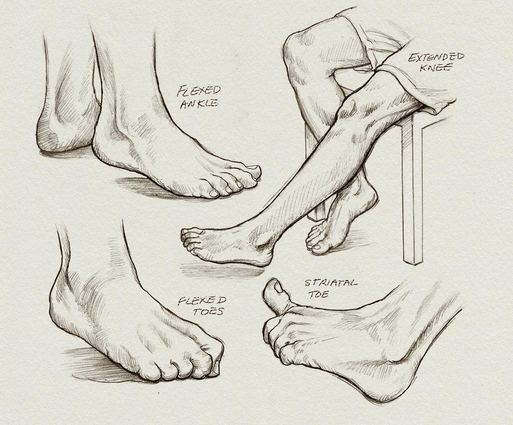 depictions of spasticity — paul petersen illustration/animation, Skeleton