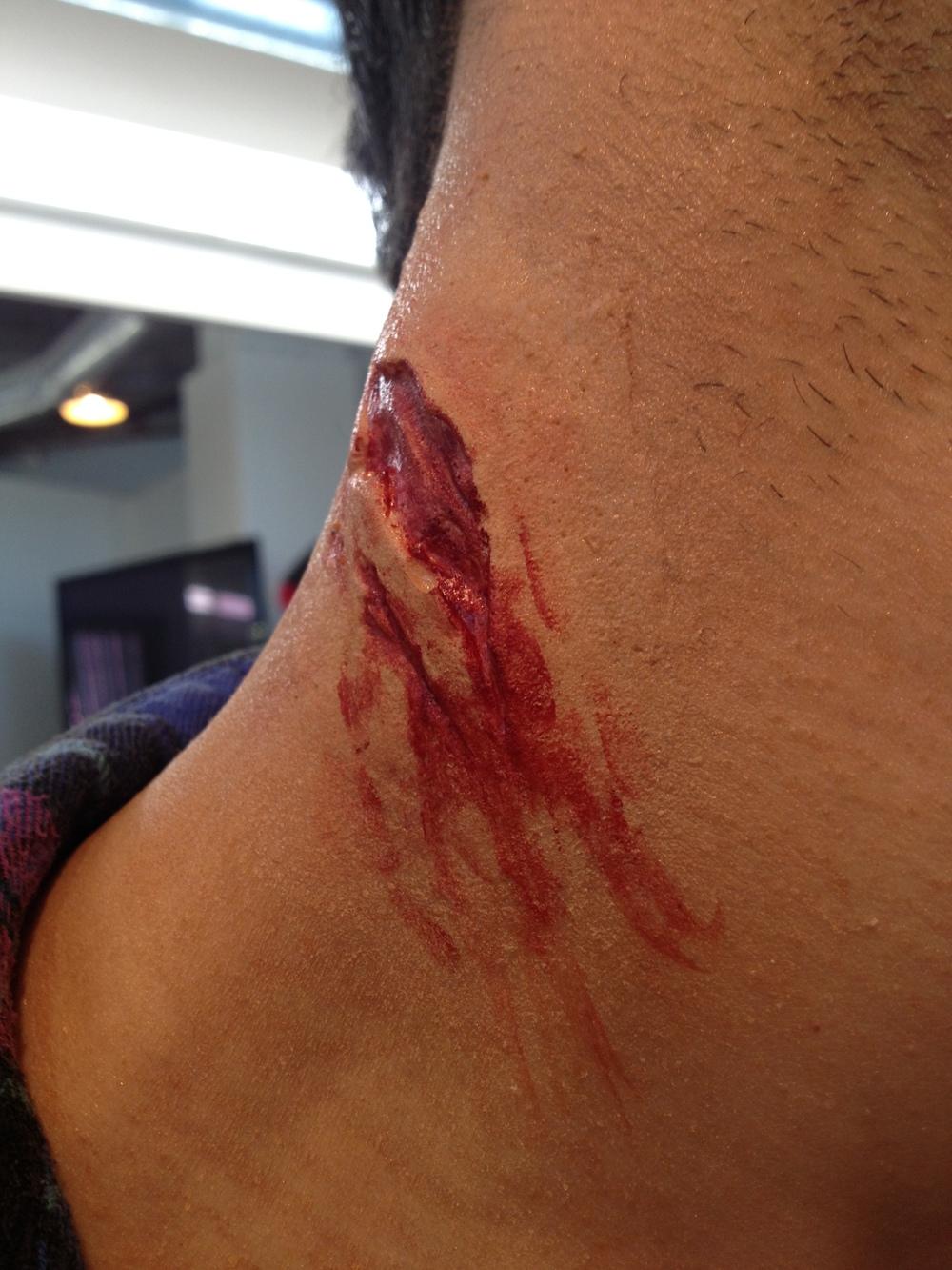 Gelatin neck wound
