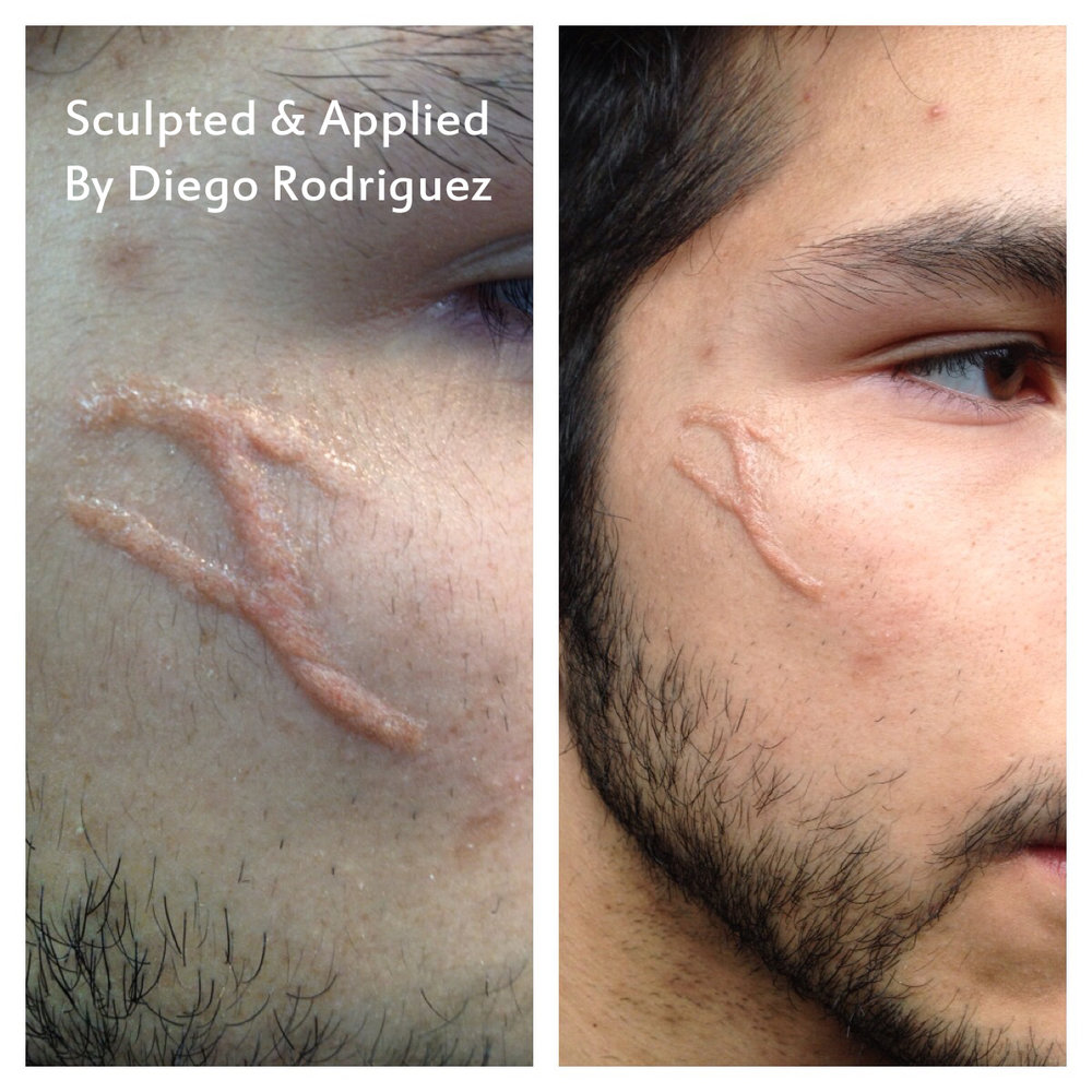 Basic scar.JPG