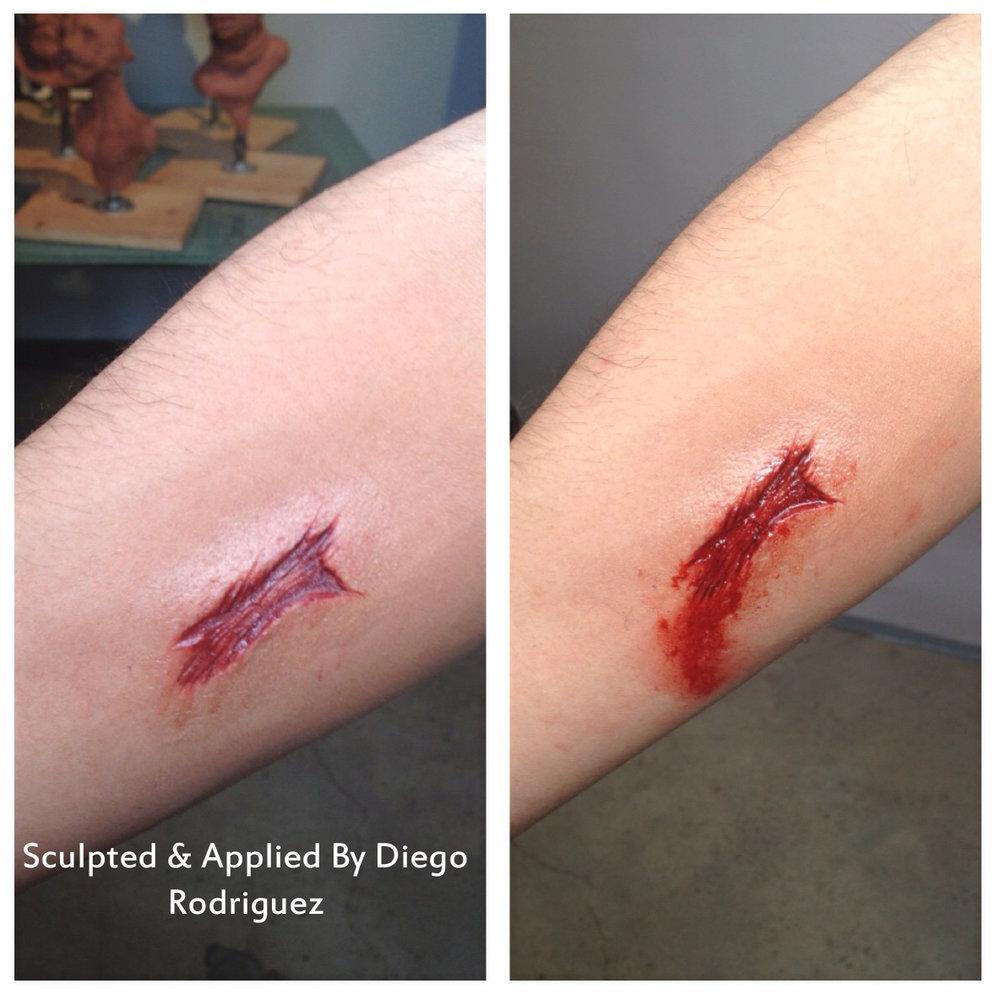 Basic wound.JPG