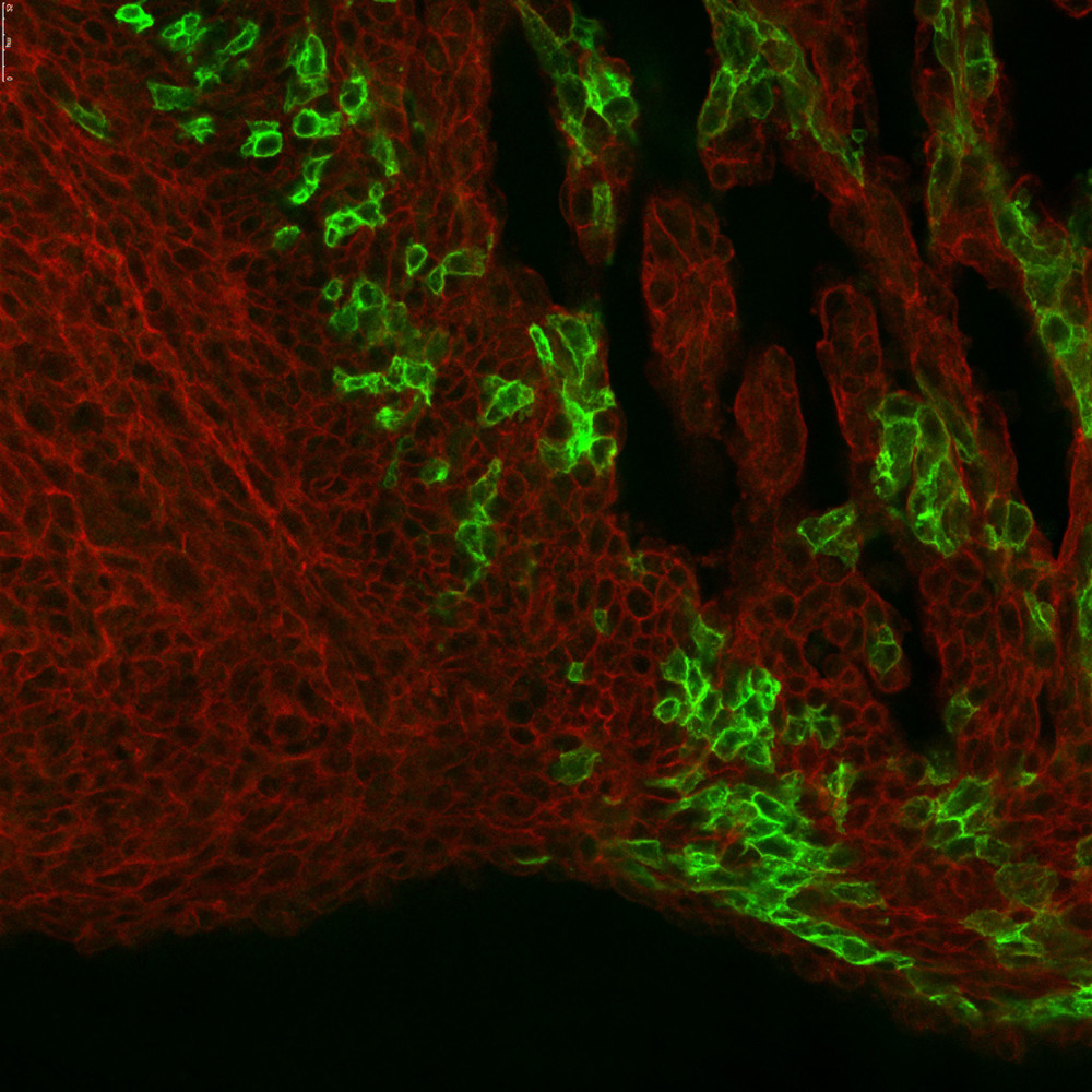 A confocal stack of the septum of an E14.5 Tbx5-CreER/+; R26-mTmG/+ heart pulsed at E7.5 with tamoxifen.