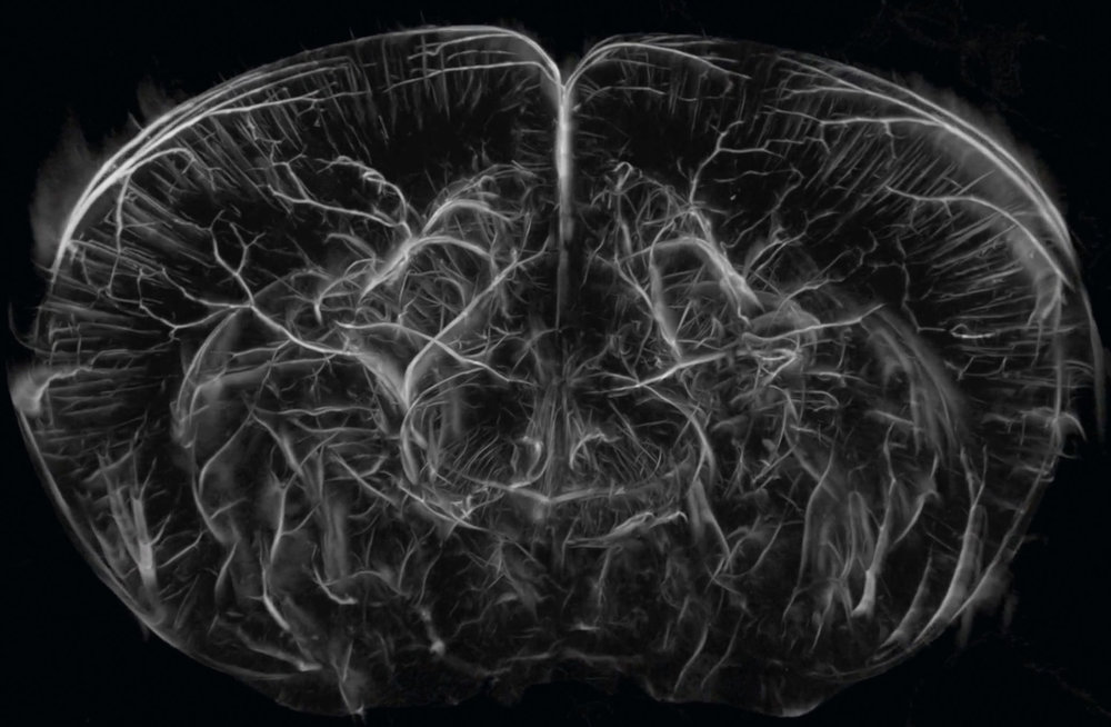 uCT_Adult_Mouse_Brain_Coronal.jpg