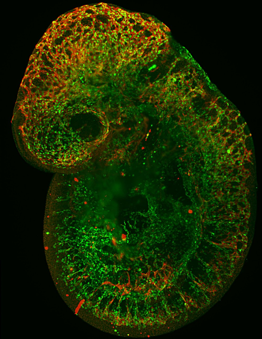 E10.5 CBF::H2B-Venus (Notch Reporter); Vegfr2::myr-mCherry mouse embryo.