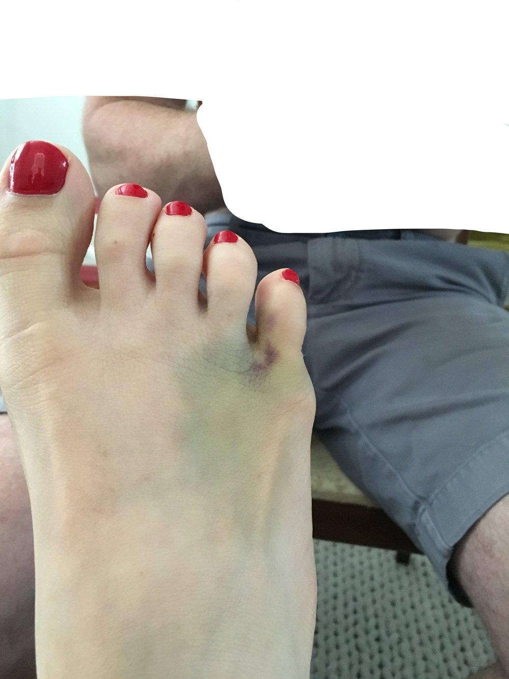 Broken-pinkie-toe-foot