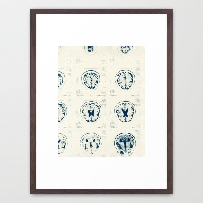 head-3p2-framed-prints.jpg