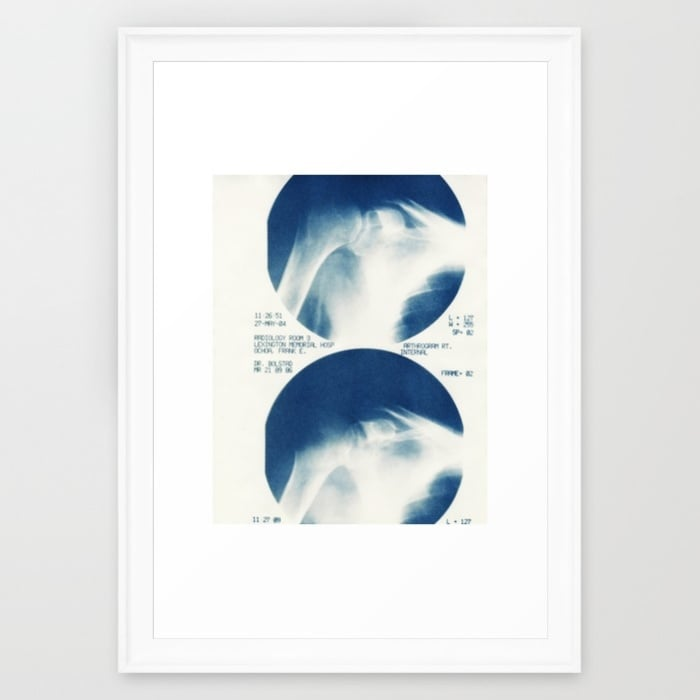 shoulder-uho-framed-prints.jpg