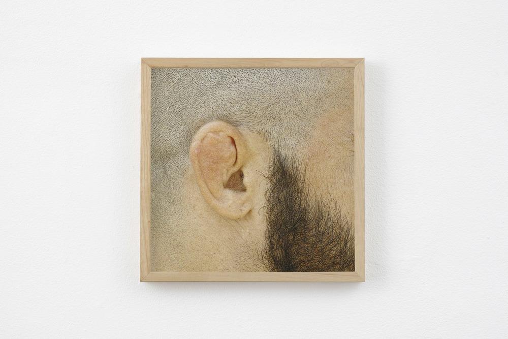 2015 Cauliflower ear 23x23cm.jpg
