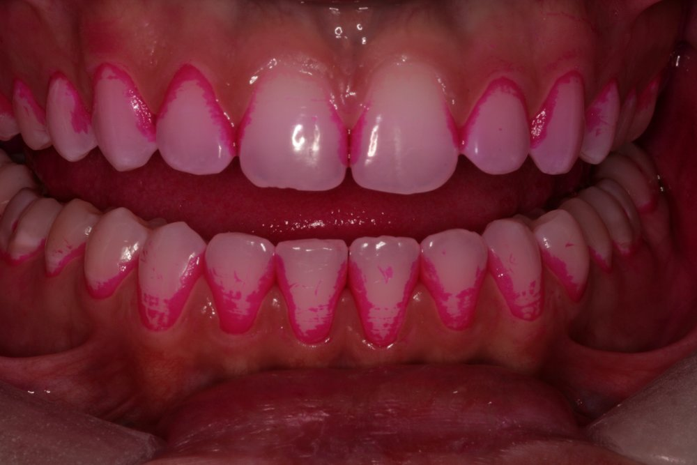 Dental plaque made visible with disclosing solution. This was missed with toothbrush and floss.