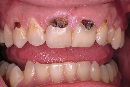 Cervical decay caused by not brushing well along the gumline.