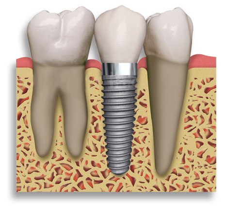 Implants can replace a single tooth with a crown. This eliminates the need to cut down the teeth on either side of the space to place a bridge.