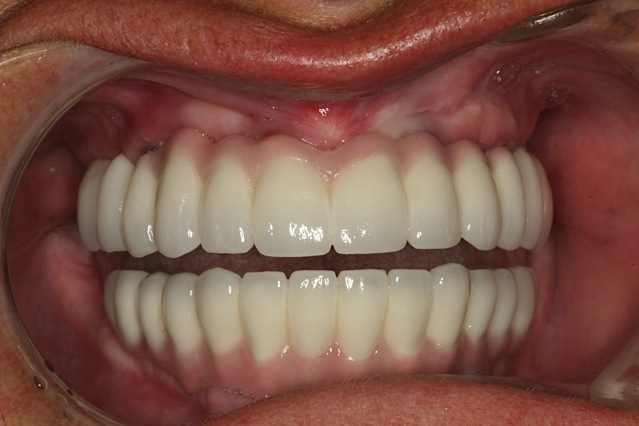 Implants can be used to anchor and support full upper and lower sets of teeth.