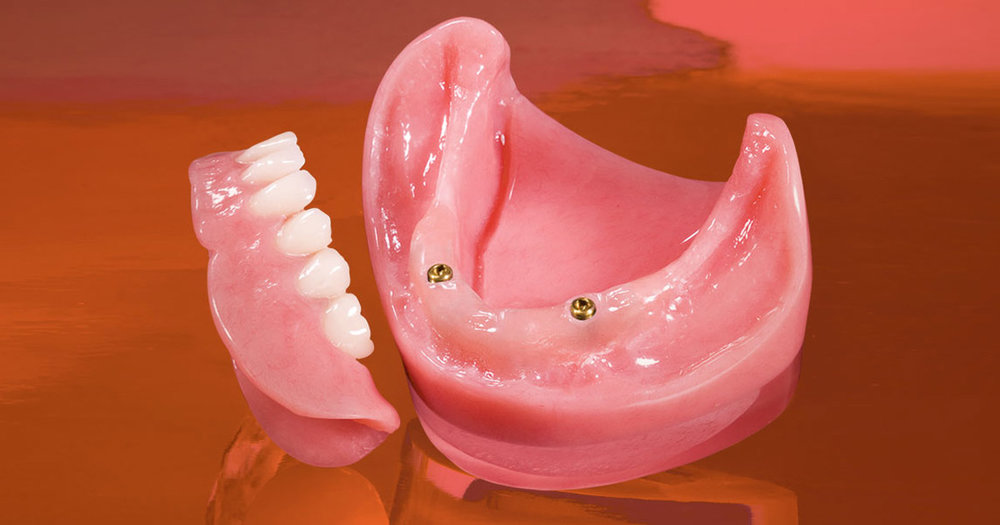 A lower denture can be supported with as few as two implants and snap-on type attachments to allow for function as well as easy removal for cleaning.