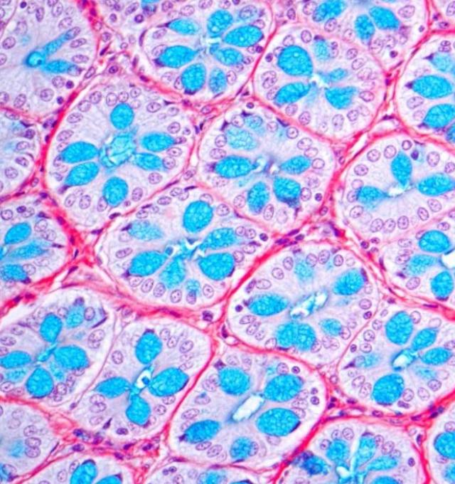 Mucus cells