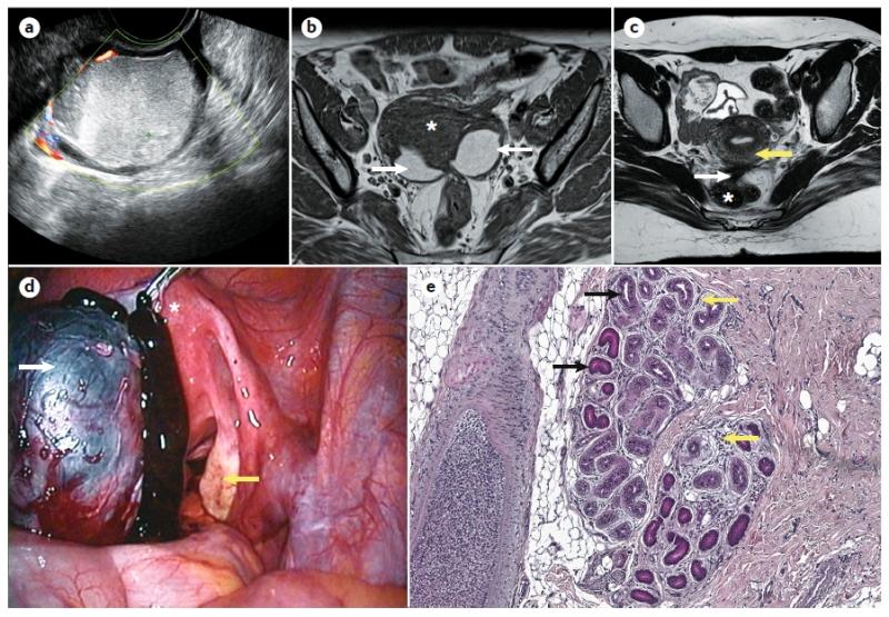 Diferentes formas de diagnosticar a endometriose: ultrassonografia (a); ressonância nuclear magnética (b,c); intraoperatório/videolaparoscopia (d); biópsia/histologia (e).  Nature Reviews Disease Primers volume 4, Article number: 9 (2018)
