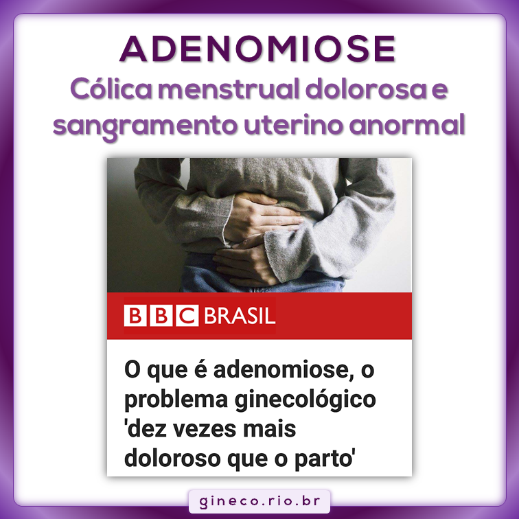 adenomiose.png
