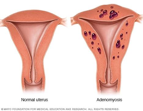 Útero normal (à esquerda) e útero com adenomiose (à direita) - https://www.mayoclinic.org/diseases-conditions/adenomyosis/symptoms-causes/syc-20369138