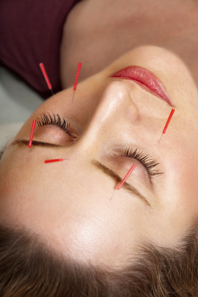 Acupuncture for Jaw Pain