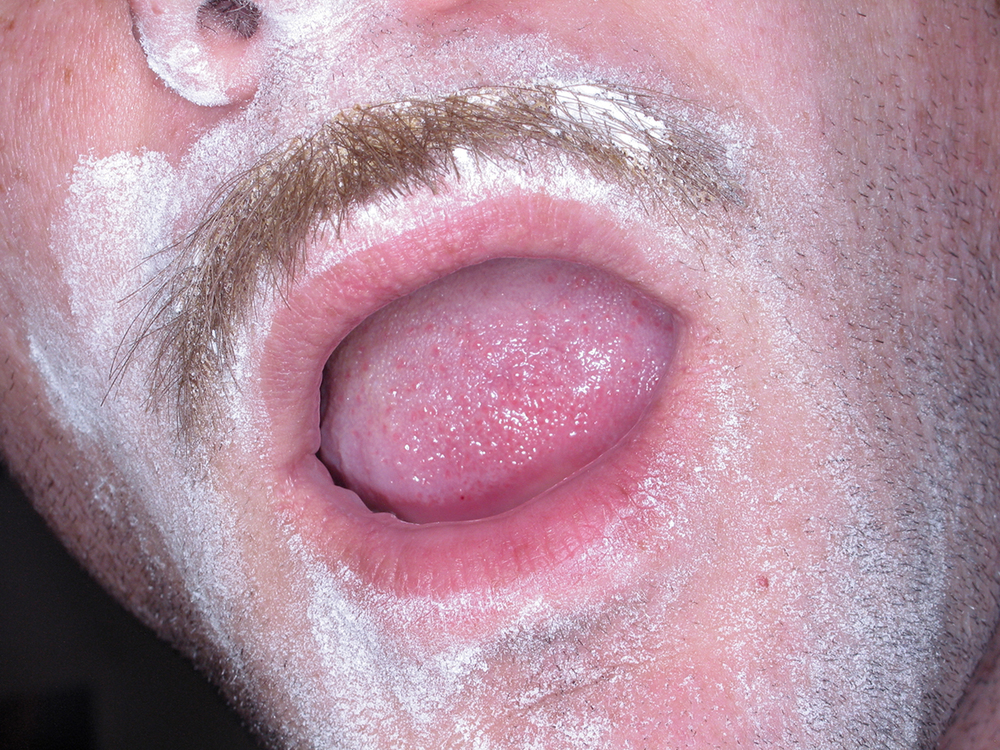Mustache, 2008
