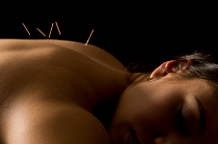 Acupuncture for chronic back pain