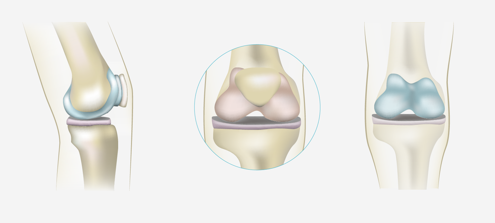Several illustrations of the knee done for the interactive application.